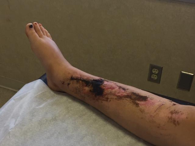 sophia's leg